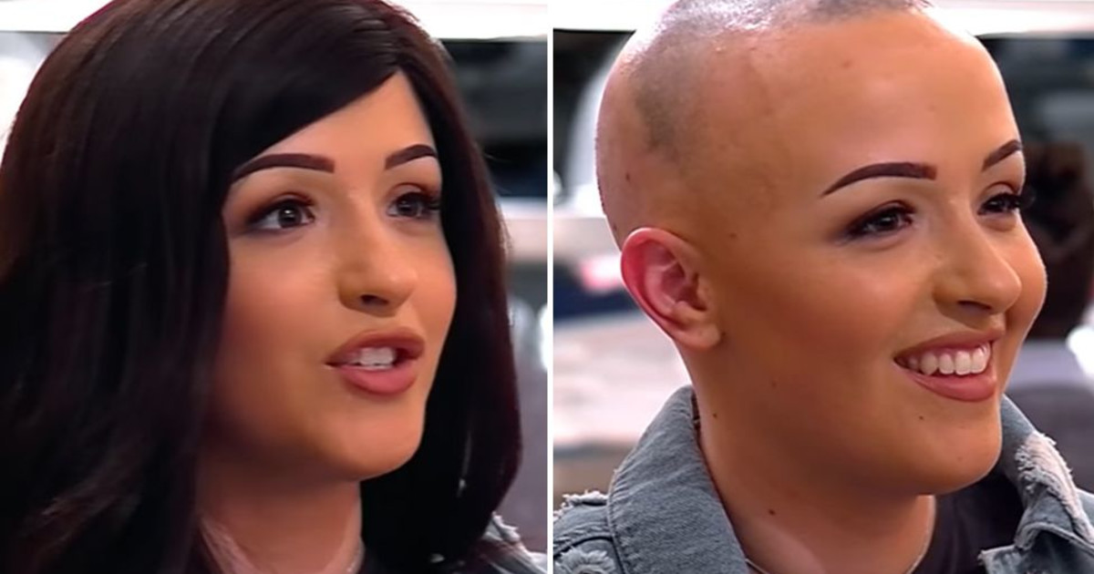 Dating a girl with alopecia
