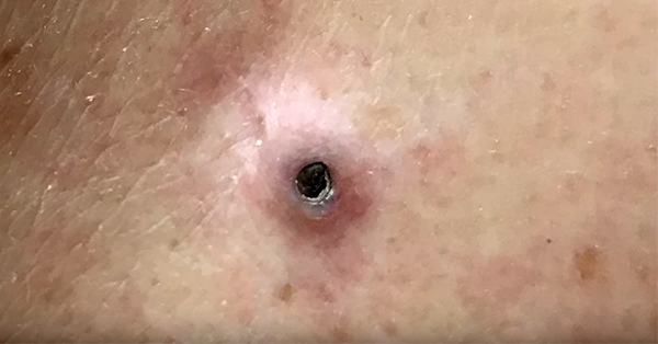 Dr Pimple Popper Strikes A Goldmine With This Gargantuan