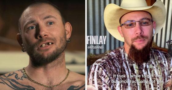 John Finlay tiger king, tiger king John Finlay, John Finlay new teeth